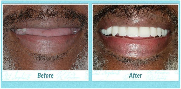 1 day dental implants reviews