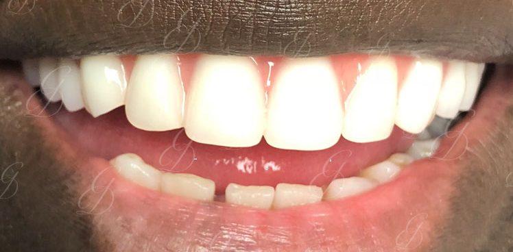 gentle dental care liverpool reviews