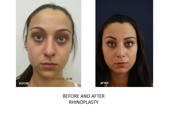 harley street nose clinic reviews