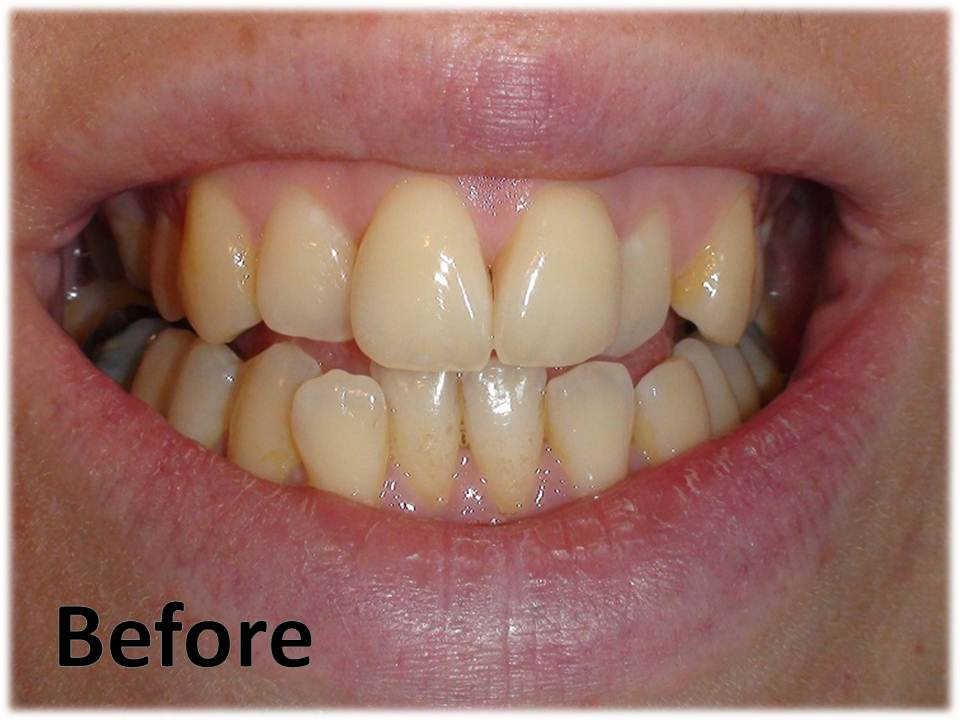 clara beauty teeth whitening review